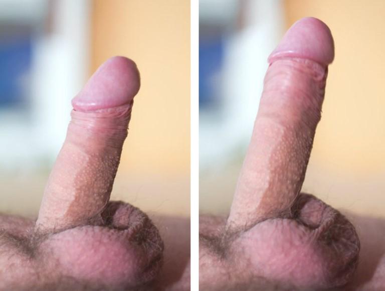 მეთოდი penis გაფართოების მასაჟი
